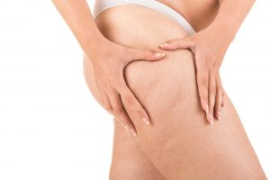 Whole Body Cryotherapy and Cellulite Reduction