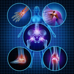 We've had Workman's Comp clients have their Chill and Heal Cryotherapy appointments approved and covered.