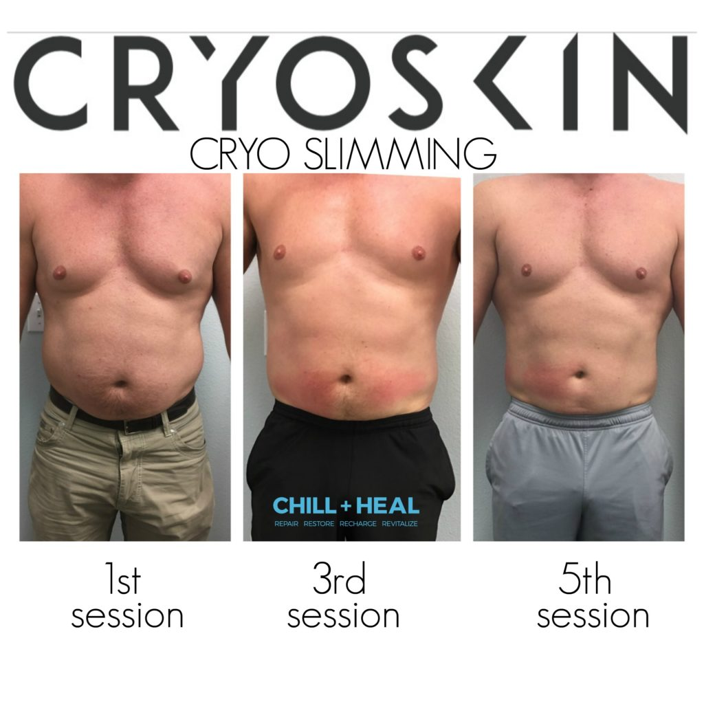 stomach before and after photo collage for Cryoskin